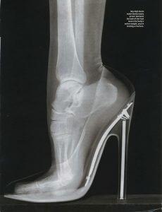 funny high heels x ray