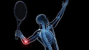 tenisz könyök